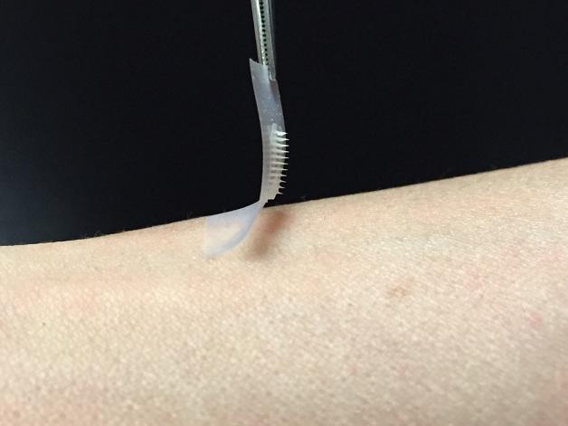 Pesquisadores americanos desenvolvem adesivo de insulina que substitui injeções para diabéticos